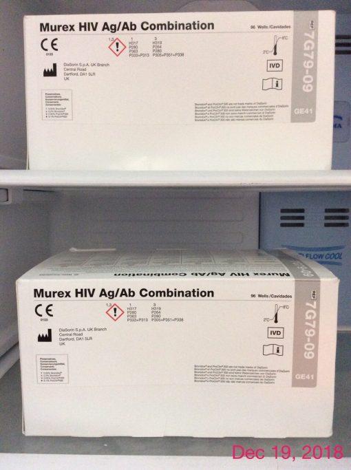 Test Elisa Murex HIV Ag Ab