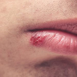 mun rop herpes Trieu chung HIV AIDS