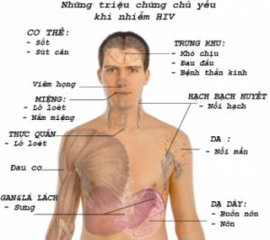 trieu chung chu yeu khi nhiem HIV AIDS