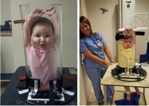 Chụp X-quang cho trẻ nhỏ kiểm tra mức độ dậy thì