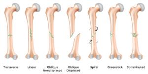 gãy xương rất phổ biến trong chấn thương thể thao