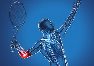 chấn thương khửu tay tennis thể thao